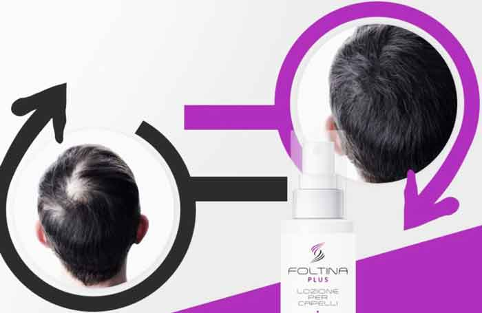 Risultati di Foltina Plus anticaduta per capelli