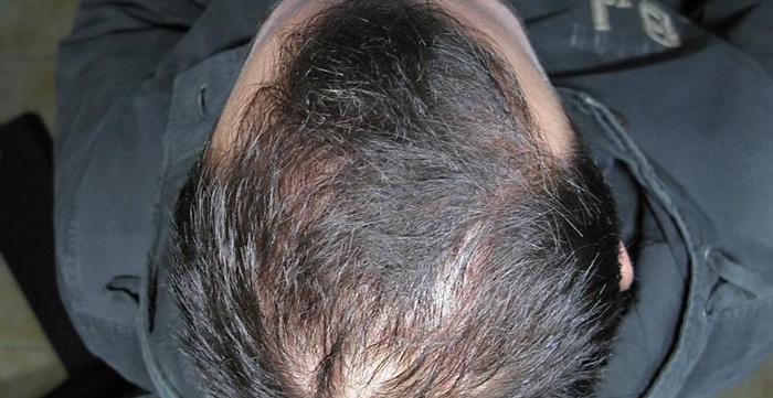 Cura calvizie per alopecia